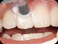 歯面の研磨